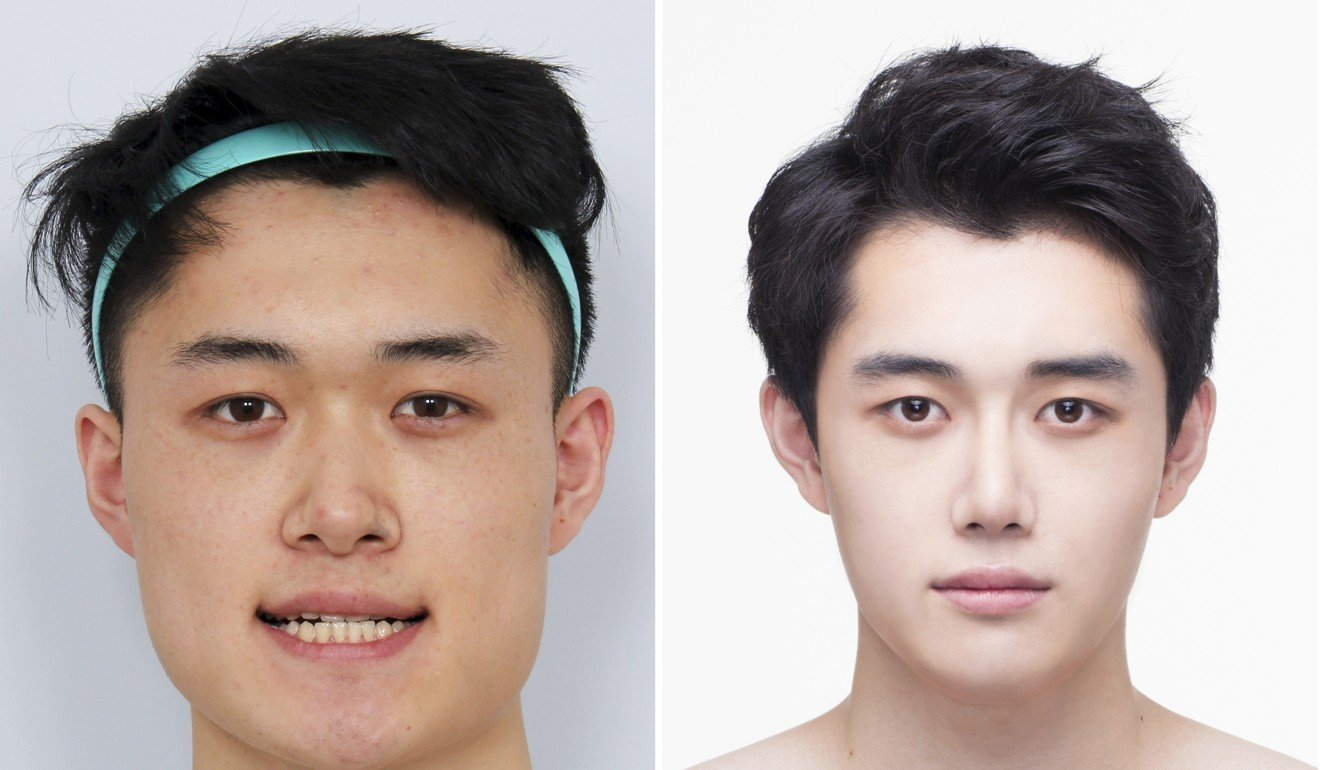 South korean men having plastic surgery to get pretty boy looks and macho physiques of their k pop and k drama idols south china morning post