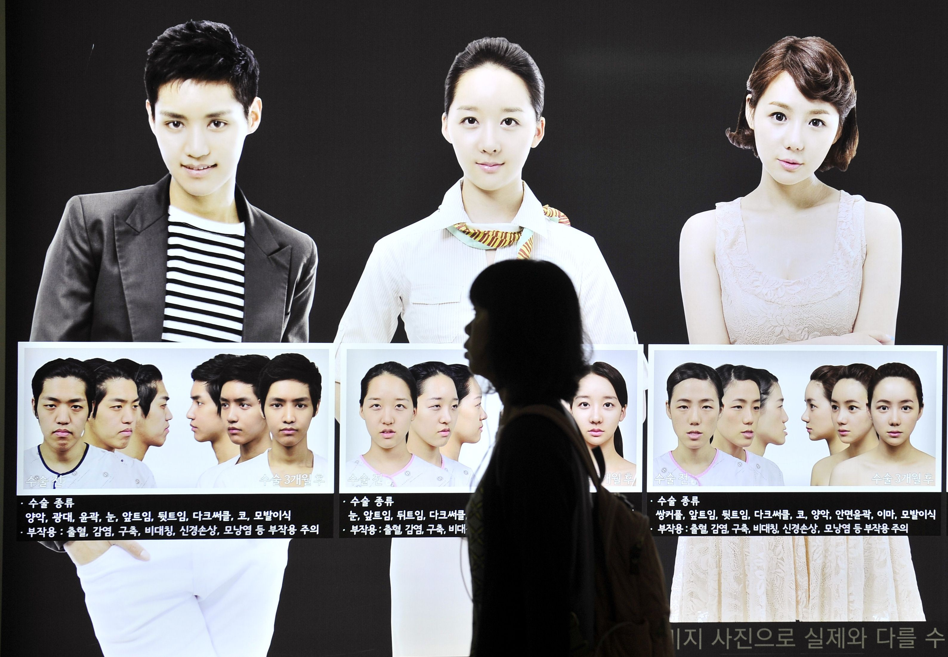 This social network is where China's plastic surgery fans share