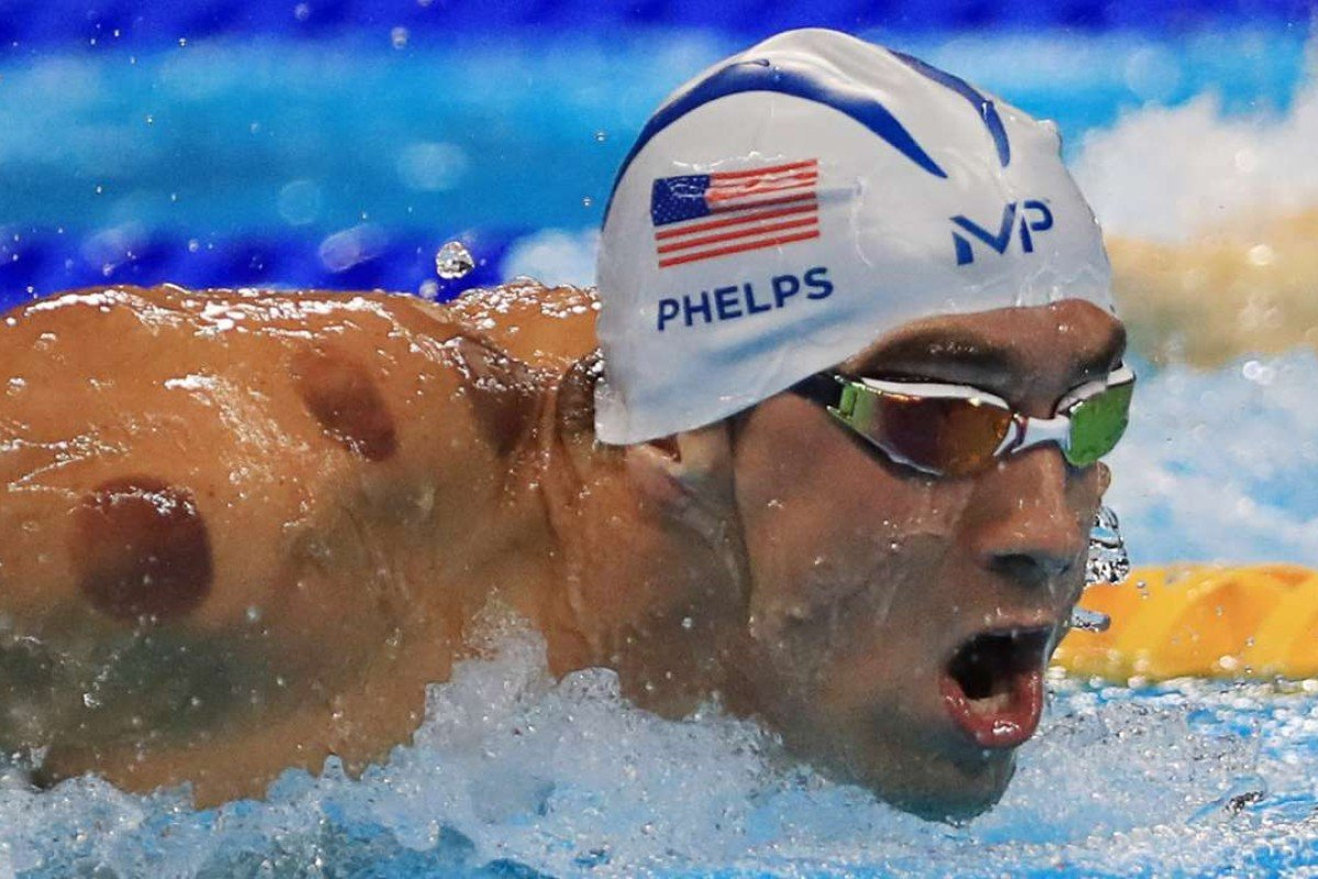 Five things you should know about cupping, Chinese medicine