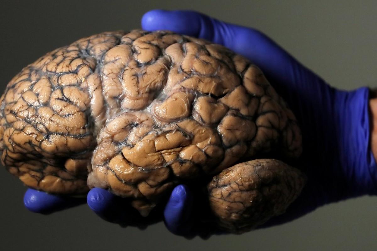 Easy Diagram Of Human Brain Class 10 ~ DIAGRAM