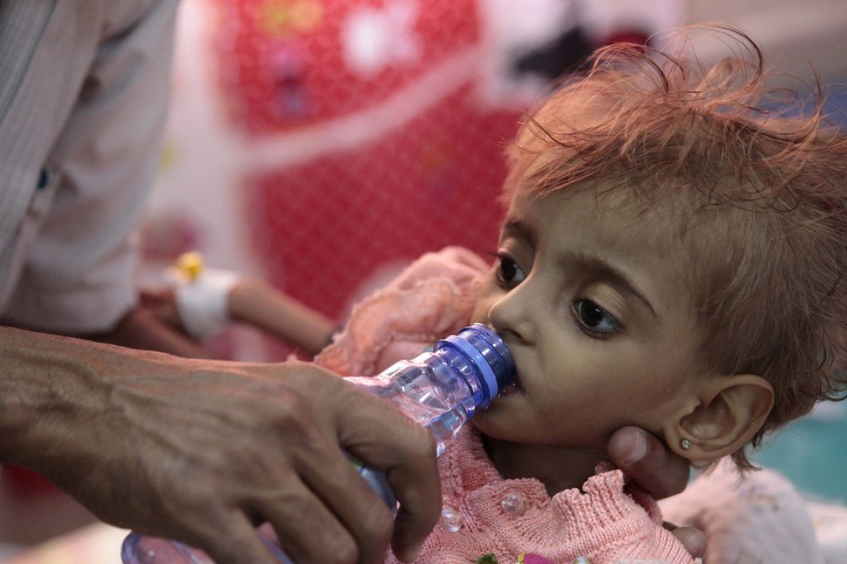 Yemen victim of bloody brothers in arms
