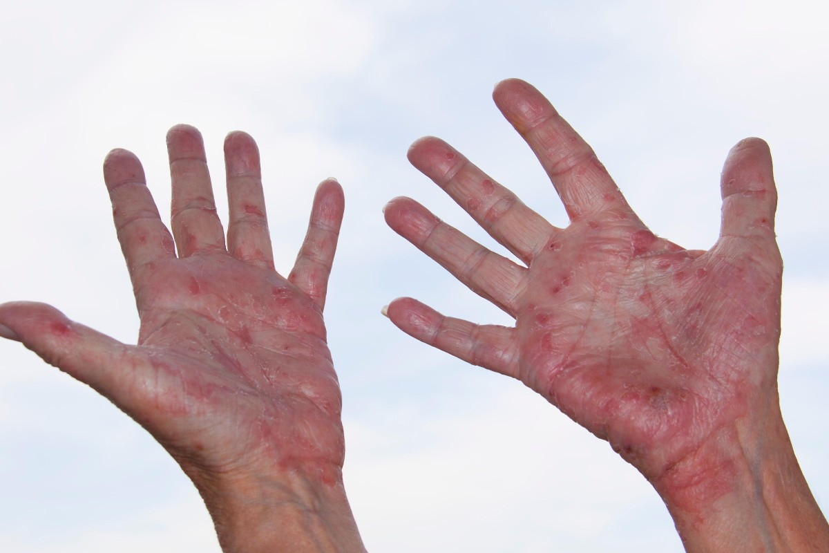 Eczema: its causes, how to get relief from the itching, and
