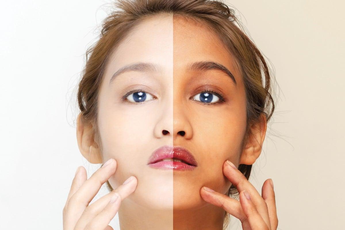 Asia's addiction to whiter skin runs deep – but the backlash has begun |  South China Morning Post