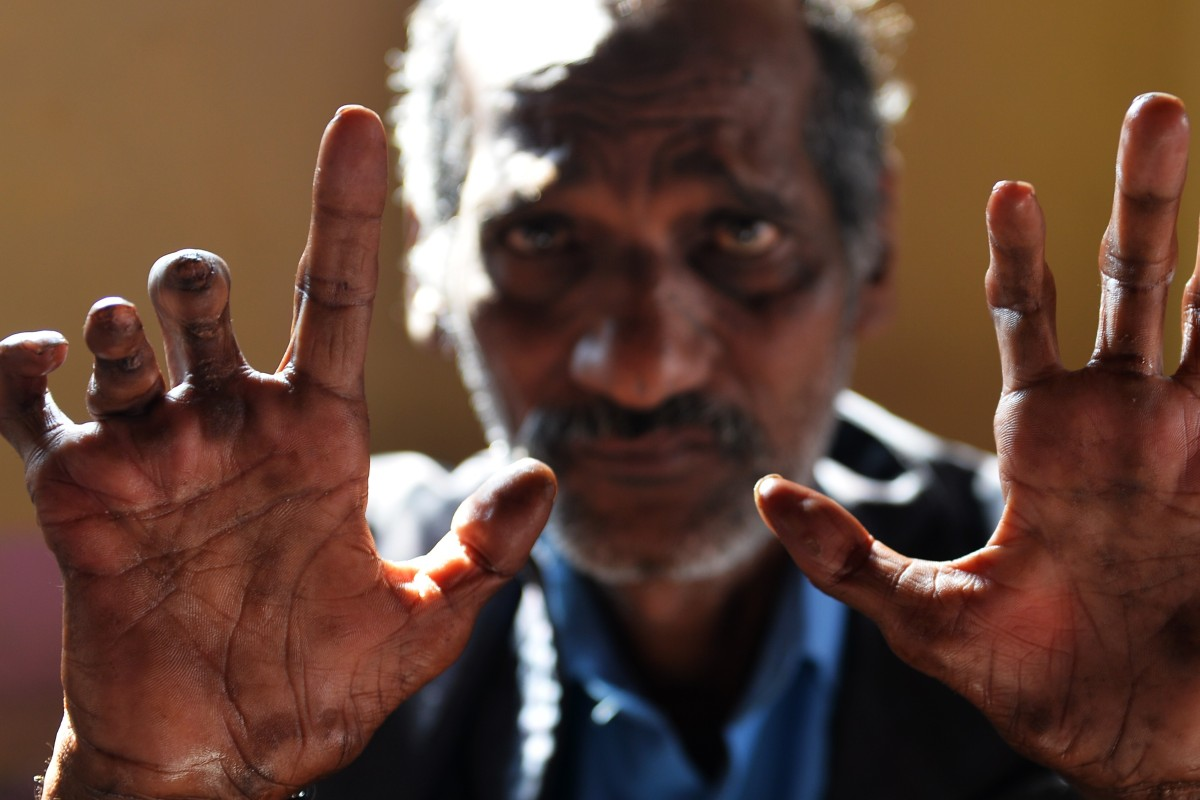 India's leprosy disaster, its millions of victims, and the vaccine