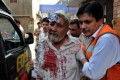 A paramedic helps a victim of a bomb explosion, at a local hospital in Peshawar, Pakistan on Saturday.. At least 15 people were killed in the attack. Photo: EPA