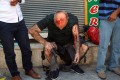 A man wounded in the explosion in Suruc awaits attention. Photo: AP