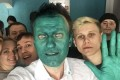 Russian opposition leader Alexei Navalny takes a selfie with supporters after an unknown assailant sprayed a bright green antiseptic stain on his face in a city of Barnaul, Russia on Monday. Photo: AP