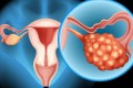Ovarian cancer is known as the silent killer because it presents no symptoms in its early stages. Photo: Alamy