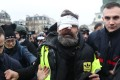 Jerome Rodrigues, one of the leaders of the yellow vest movement, is led away after getting injured in the eye during clashes between protesters and riot police in Paris on January 26, 2019. Photo: AFP
