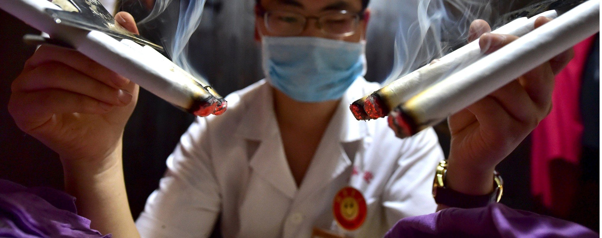 A TCM moxibustion treatment. Photo: Reuters