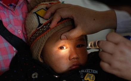 Four-year-old Xiaolong, from a rural area of southwest China, was diagnosed as having cataracts by visiting doctors and received surgery to correct them with the help of an NGO. Photo: Handout