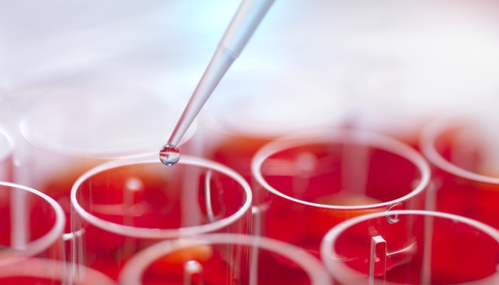 Pipetting specimens into stem cell cultures. So-called induced pluripotent stem cells (iPSCs), which can be easily made from human skin or blood, have been used to treat monkeys with Parkinson's symptoms. Photo: Corbis