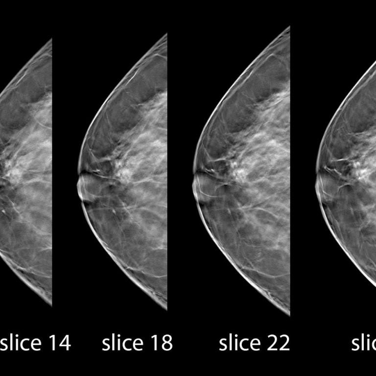mammogram+over+50