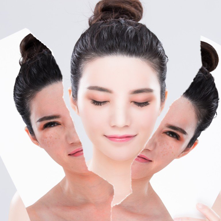You can look like a vampire: skin whitening horror stories