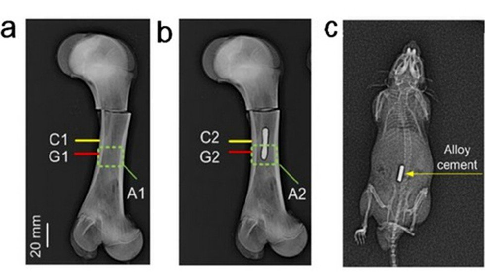 Chinese Researchers Test Metal Alloy To Fix Broken Bones In Minutes