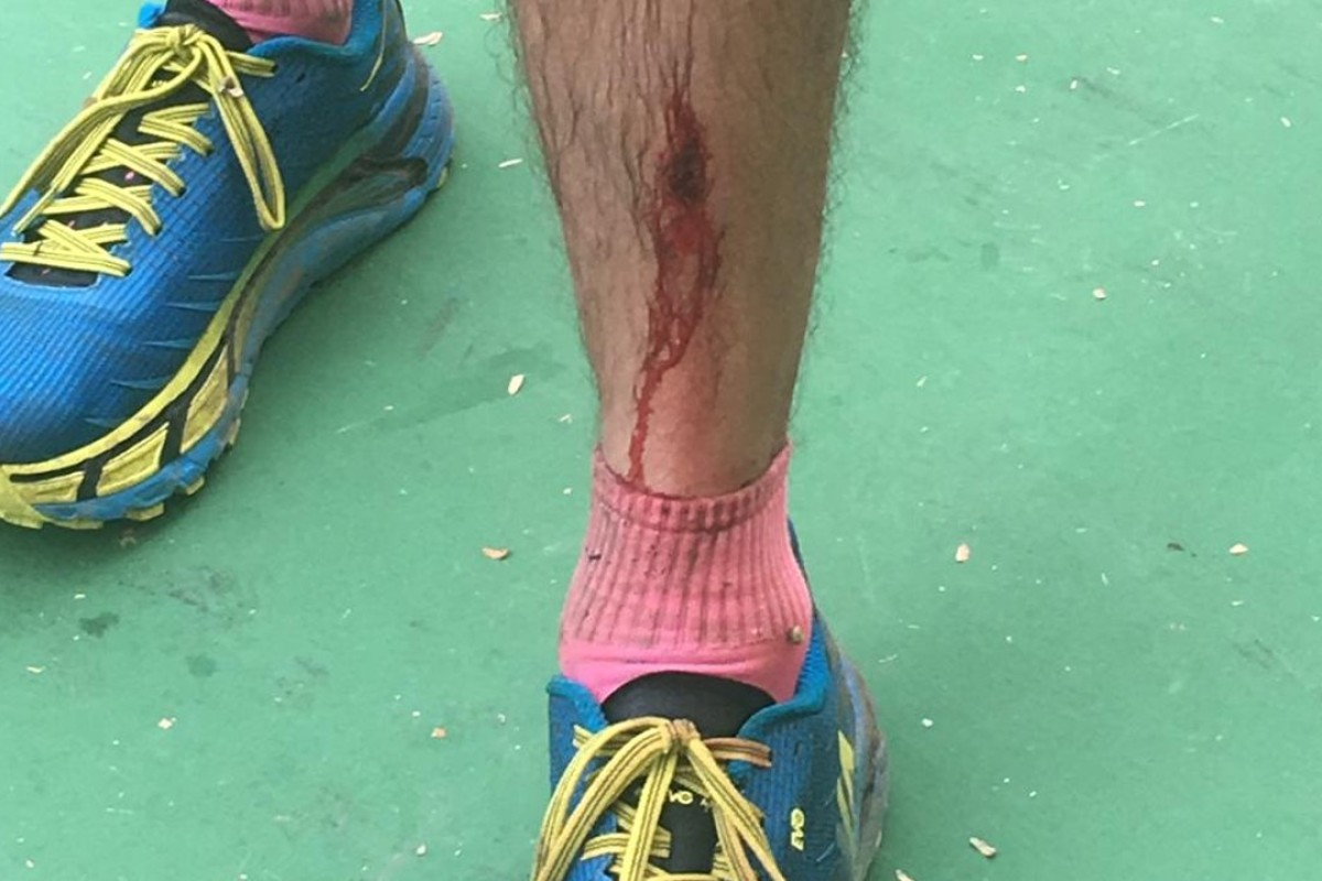 John Ellis picked up a few scrapes on his legs after blacking out while urinating during his pre-race warm-up. Photos: Ben Young