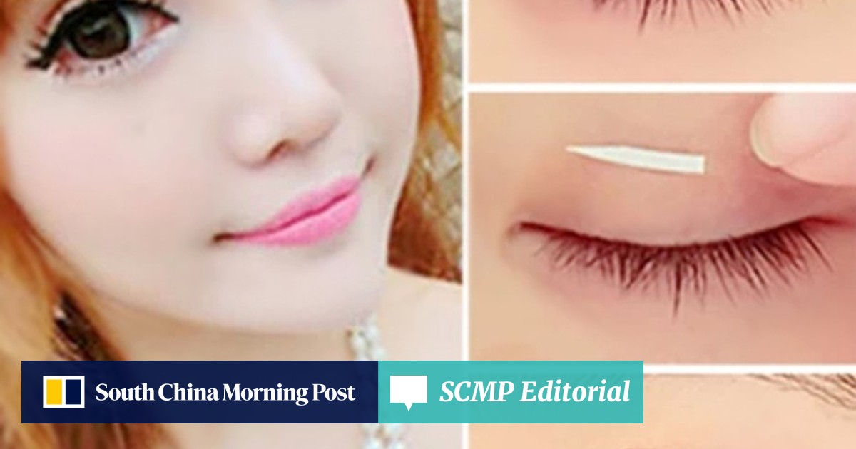 Why double eyelid surgery is on the rise in Asia: rising incomes and