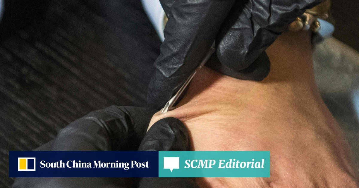 Thousands of people in Sweden get microchip implants for a