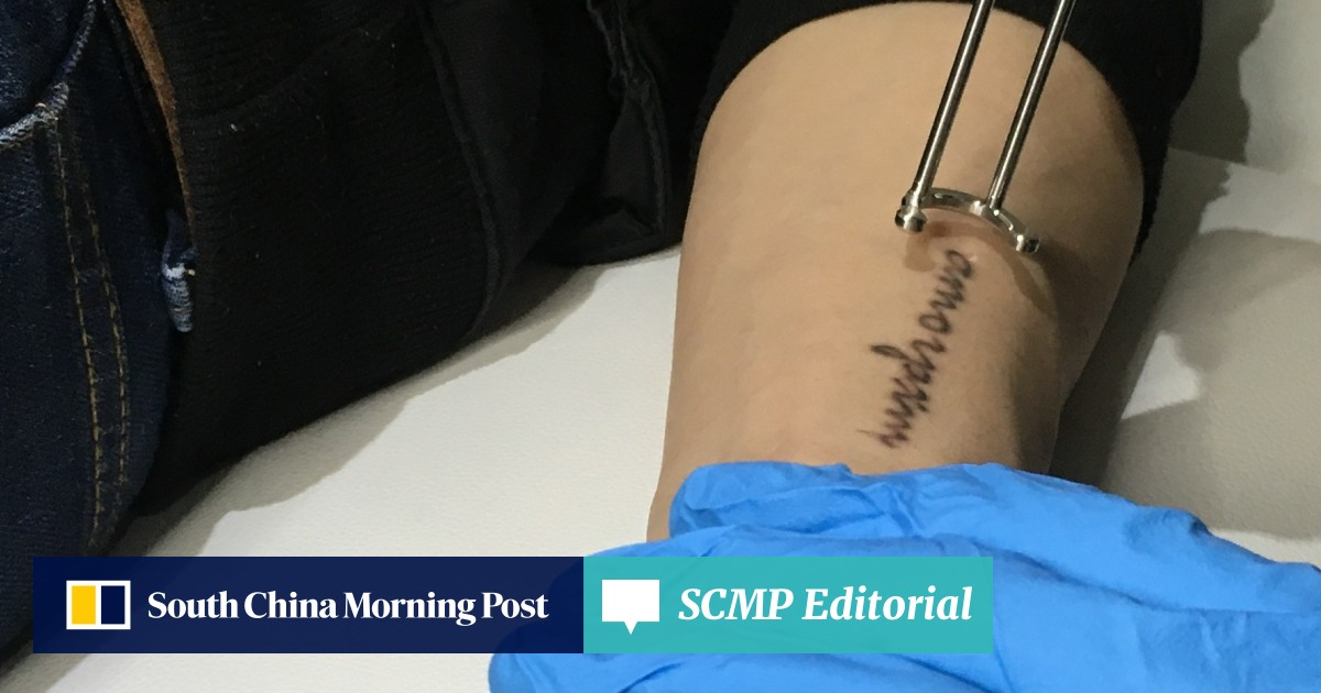 4df42a994 Why laser tattoo removal is on the rise – and why you should think twice  before getting inked in the first place | South China Morning Post