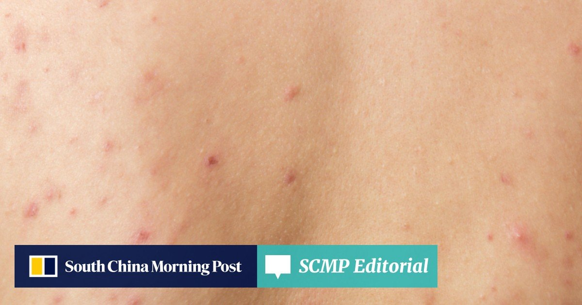 Acne: why some adults have it, how to treat it, and one