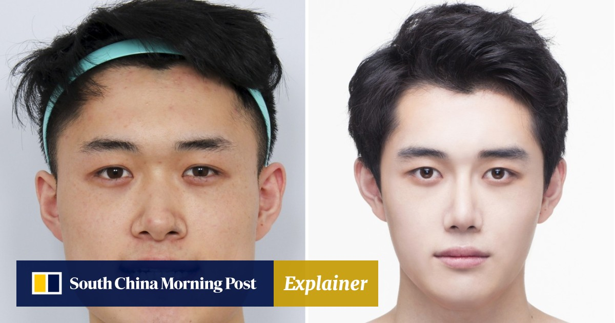 South Korean Men Having Plastic Surgery To Get Pretty Boy Looks