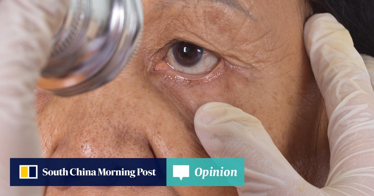 789d2452de4 Simple eye exam may one day help doctors predict Alzheimer's disease before  symptoms even appear | South China Morning Post