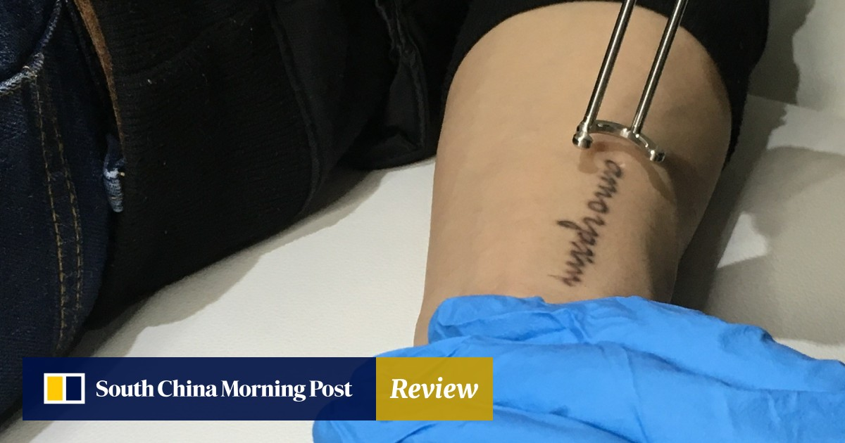 Why laser tattoo removal is on the rise – and why you should
